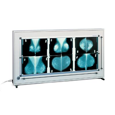 Негатоскоп Planilux DXH 140х43 для маммографии