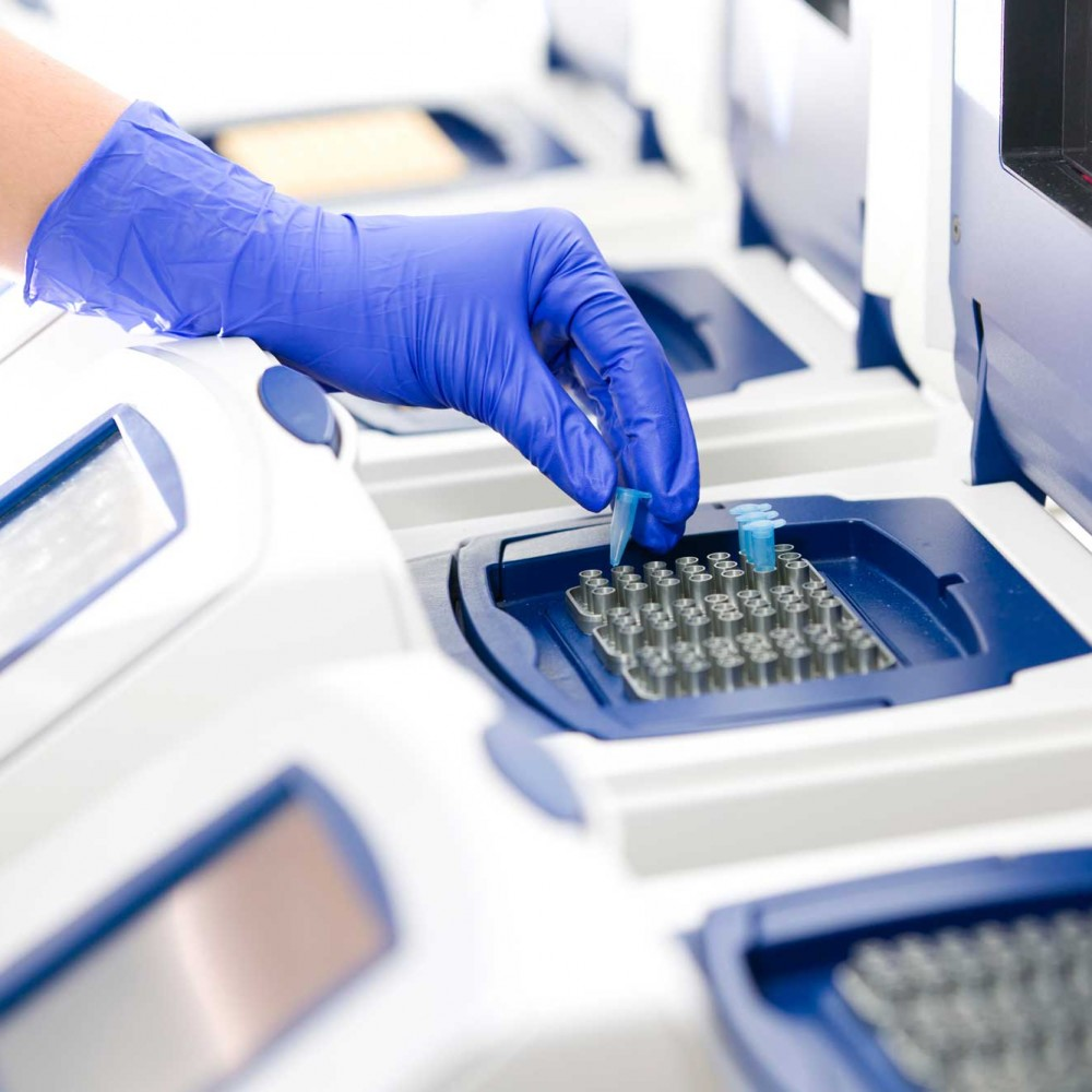 ПЦР анализ на коронавирус