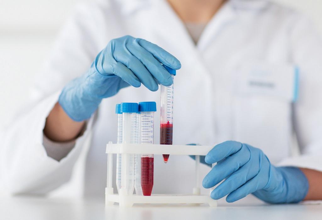тест антитела